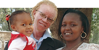 Albinism no wrong