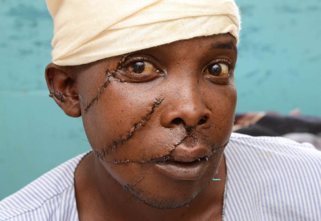 Image result for nyeri women chop