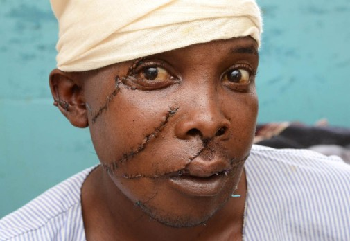 www.africanpress.me/ Battered man, Simon Kaguta in Kenya